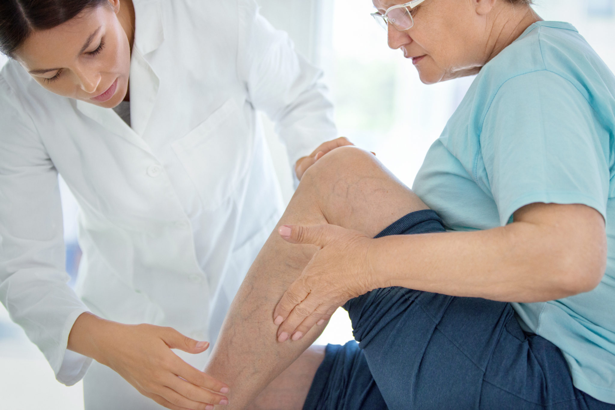 Closeup side view of female doctor massaging legs and calves of a senior female patient with visible varicose veins.