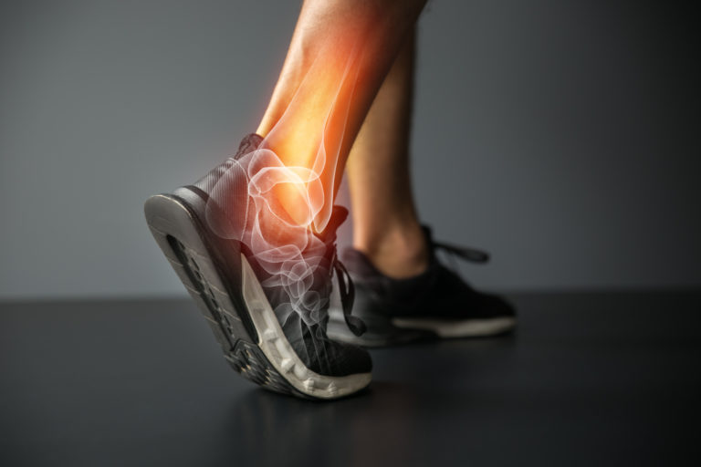Graphic depicting Ankle injury and Joint pain