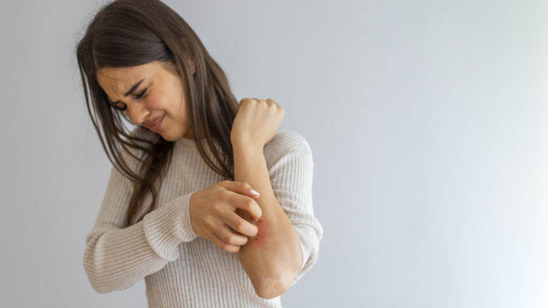 Young woman scratching arm from having itching on white background. Cause of itchy skin include insect bites, dermatitis, food/drugs allergies or dry skin. Health care concept. Close up.
